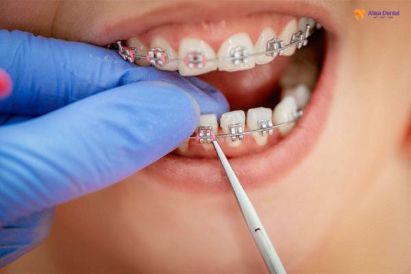 Khám phá ưu điểm và nhược điểm của các loại niềng răng phổ biến nhất hiện nay 1