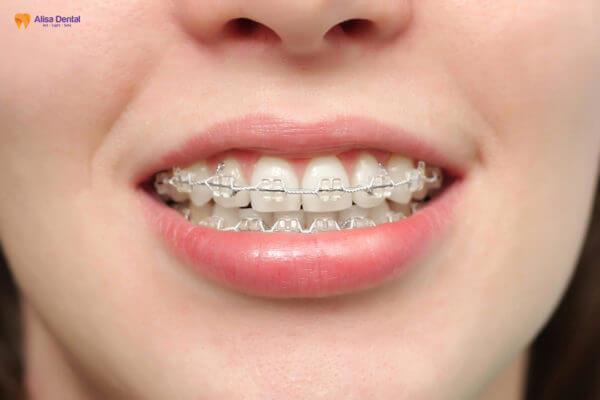 Khám phá ưu điểm và nhược điểm của các loại niềng răng phổ biến nhất hiện nay 2