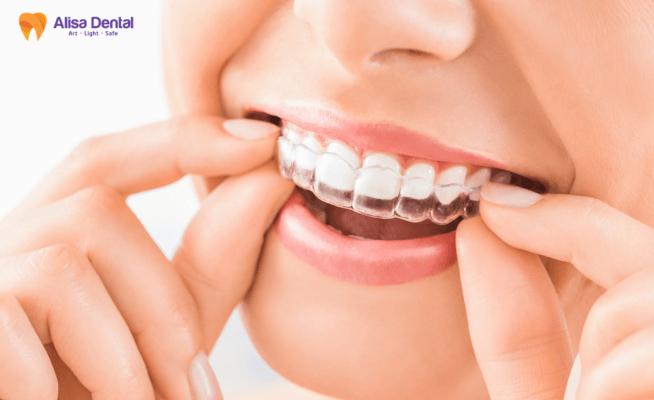 lợi ích của niềng răng 1