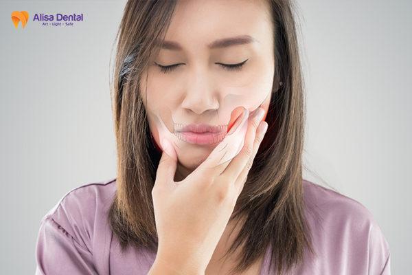 Tổng hợp phương pháp chỉnh răng móm AN TOÀN & HIỆU QUẢ 2