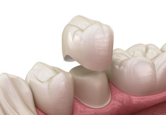 Giá làm răng sứ 1