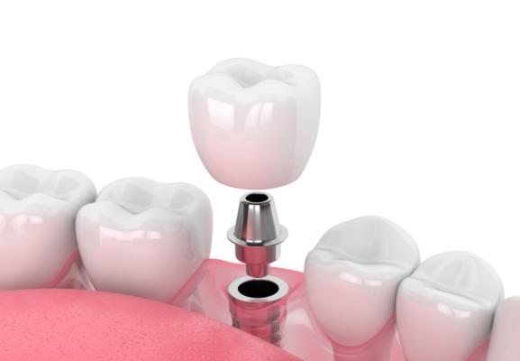 Trồng răng Implant Alisa Giảng Võ, Đống Đa, Hà Nội 2