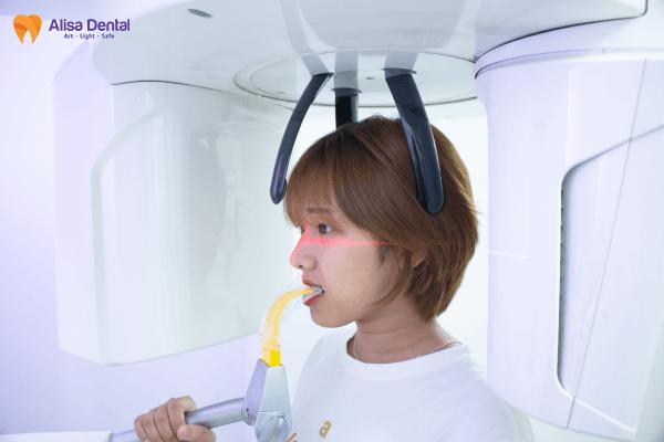 Niềng răng mắc cài kim loại - Phương pháp chỉnh nha AN TOÀN & TIẾT KIỆM 4