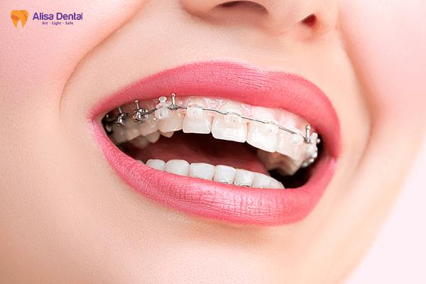 Niềng răng chỉnh nha Alisa Giảng Võ, Đống Đa, Hà Nội 2
