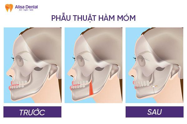 Răng móm 3
