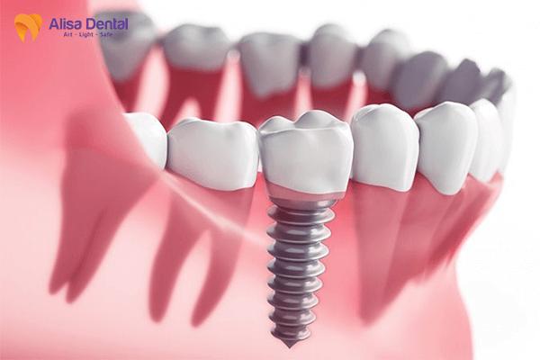 Trồng răng Implant Alisa Giảng Võ, Đống Đa, Hà Nội 1