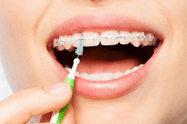 Bọc răng sứ có niềng răng được không? 3