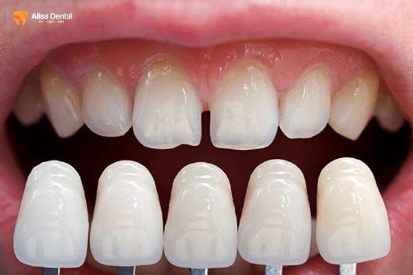 Làm sao để răng hết thưa 2