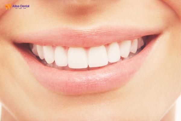Bọc răng sứ nguyên hàm 1