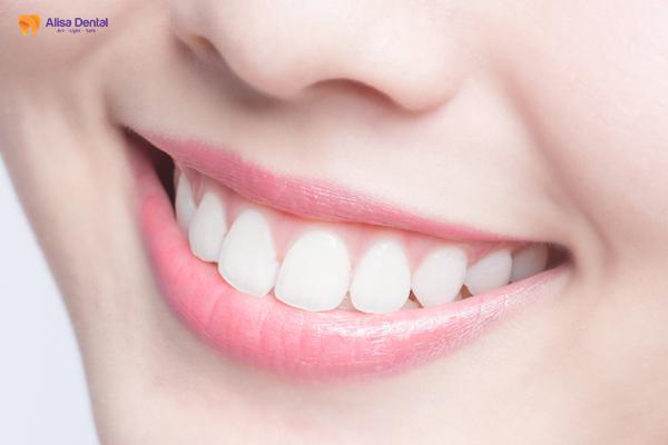 """Niềng răng khểnh - Phương pháp đem lại thẩm mỹ """"hoàn hảo"""" cho hàm răng 4"""