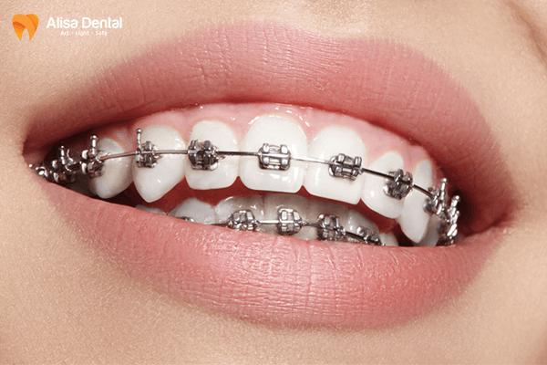 Có nên niềng răng không 1