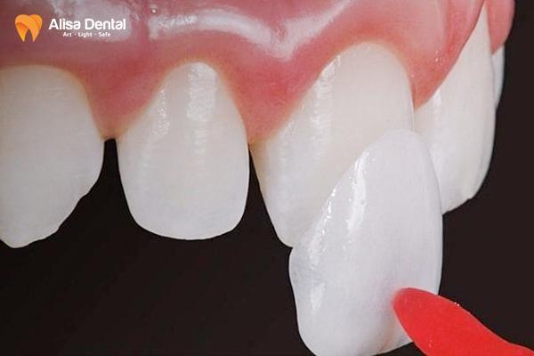 Làm răng sứ có đau không 3