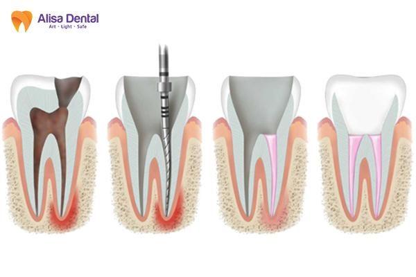 Điều trị tủy răng 4