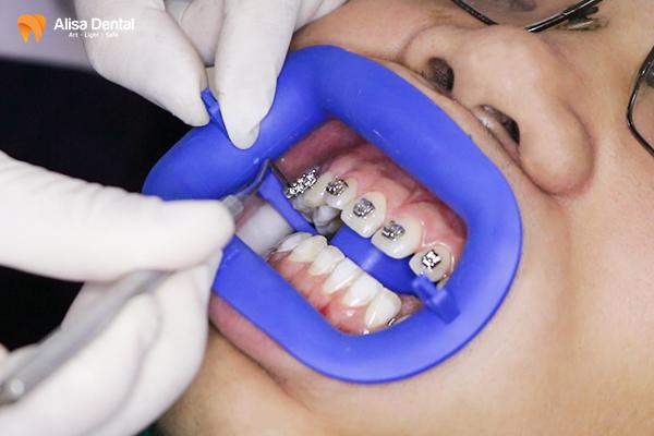 Niềng răng mắc cài tự buộc - Phương pháp chỉnh nha thông minh! 3