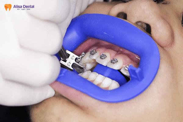 Niềng răng mắc cài kim loại - Phương pháp chỉnh nha AN TOÀN & TIẾT KIỆM 5