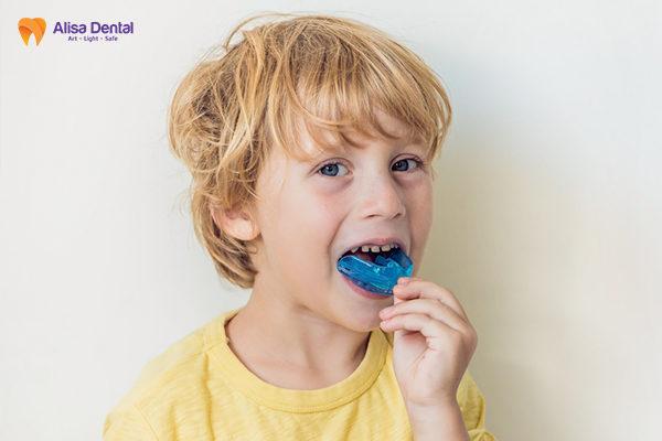 Tổng hợp thông tin hữu ích về phương pháp niềng răng trainer 1