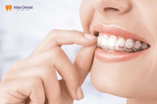 Niềng Răng Không Mắc Cài Invisalign - Phương pháp chỉnh nha thế hệ mới 2