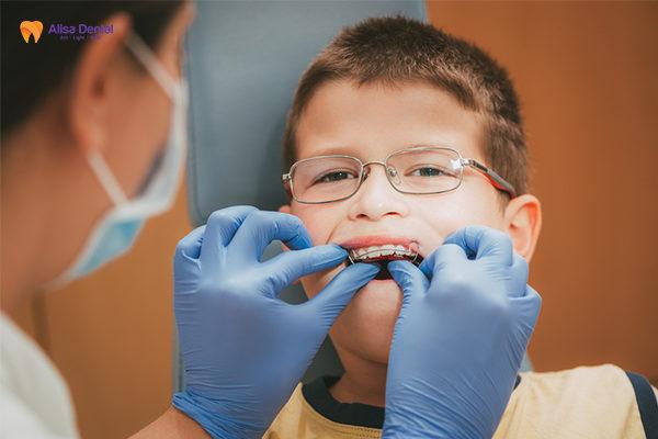 Tổng hợp thông tin hữu ích về phương pháp niềng răng trainer 4