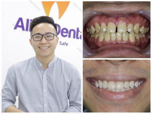 Hàm răng đẹp tự nhiên 11