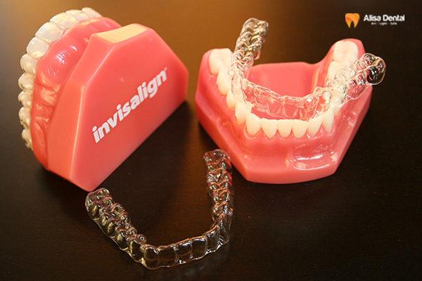 """""""Đừng ham"""" làm máng răng giá rẻ niềng răng nếu không bạn sẽ hối hận! 5"""