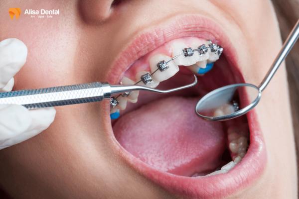 Niềng răng mắc cài tự buộc - Phương pháp chỉnh nha thông minh! 1