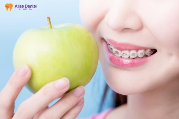 Niềng Răng Cửa - Phương pháp giúp hàm răng đều đẹp, hài hòa 2