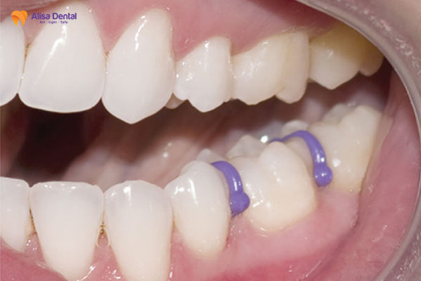 Tách kẽ răng là giai đoạn cảm thấy ê buốt và căng tức răng đầu tiên khi niềng răng