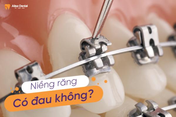 Niềng răng có đau không là thắc mắc của rất nhiều khách hàng đang tìm hiểu niềng răng