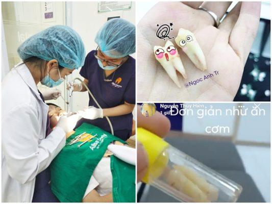 Thực hiện nhổ răng khi niềng răng tại Nha khoa Quốc tế Alisa rất nhẹ nhàng và an toàn