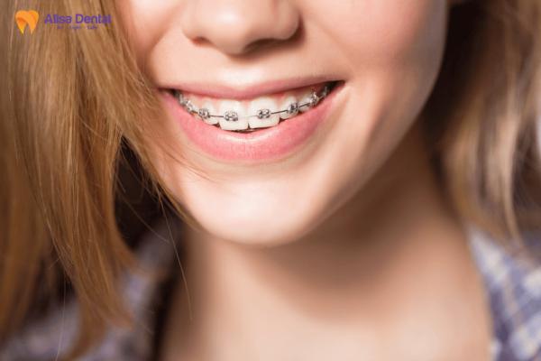 Độ tuổi niềng răng 1