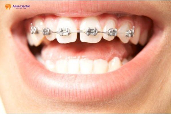 Chỉnh răng thưa ở đâu 4