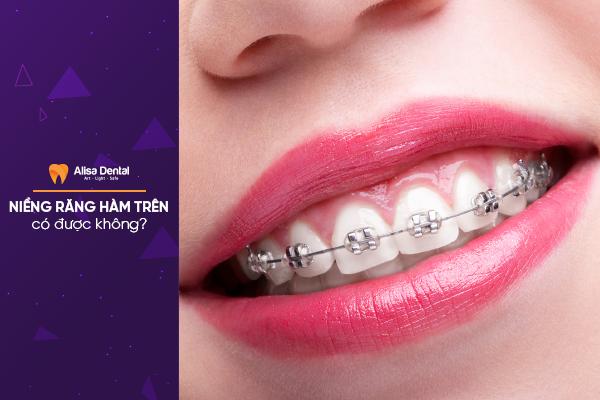 """Lắng nghe chuyên gia giải đáp: """"Niềng răng hàm trên có được không?"""" 1"""