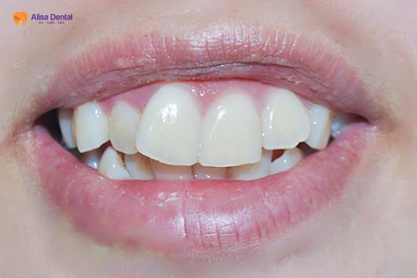 Niềng Răng Hô - Giải pháp khắc phục răng hô AN TOÀN & HIỆU QUẢ 1