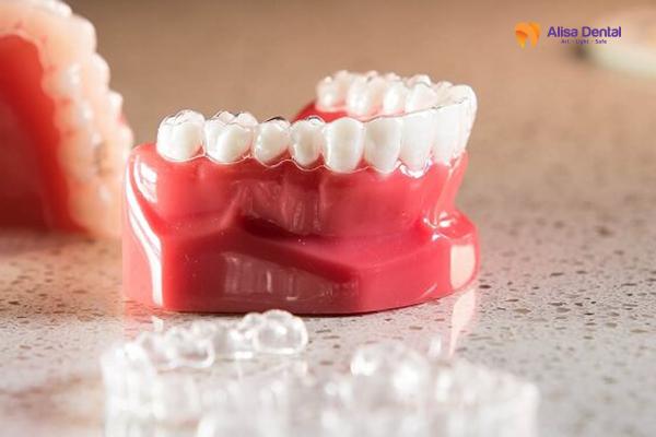 """Tổng hợp các phương pháp niềng răng nhanh """"an toàn & hiệu quả"""" 2"""