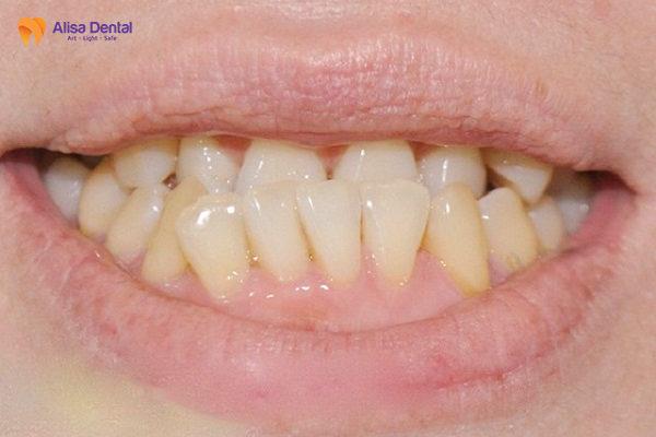 Răng móm là dạng sai lệch khớp cắn