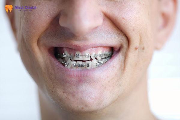 Niềng răng là phương pháp chỉnh răng móm hiệu quả