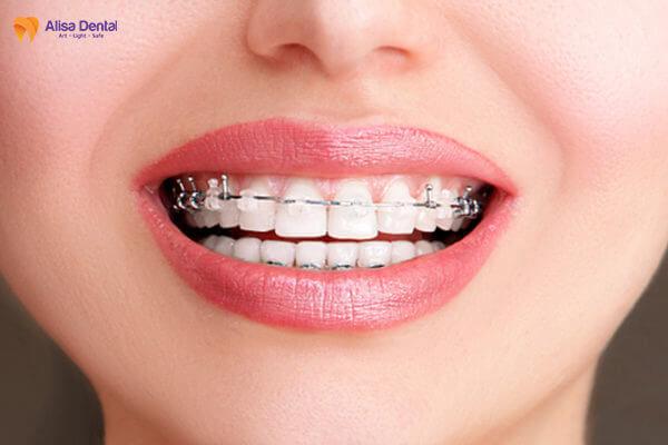 Niềng Răng Mắc Cài - Phương pháp chỉnh nha truyền thống AN TOÀN 3