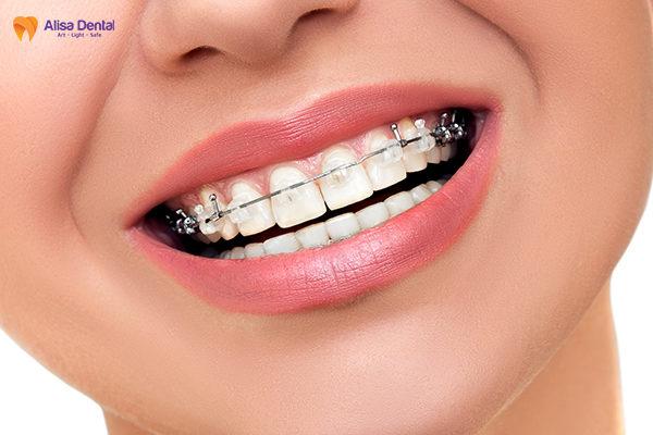 Tác dụng của niềng răng 1