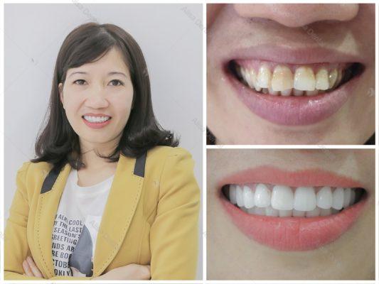 Hàm răng đẹp tự nhiên 10