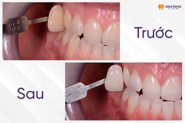 Quy trình tẩy trắng răng 5