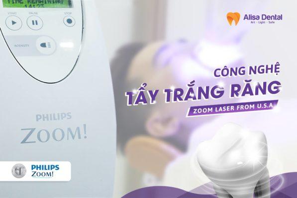Tẩy trắng răng Laser có TỐT không 3