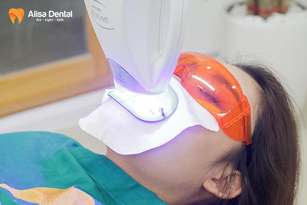 Quy trình tẩy trắng răng 4