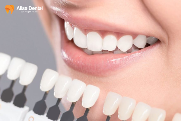 Bọc răng sứ có đau không 3