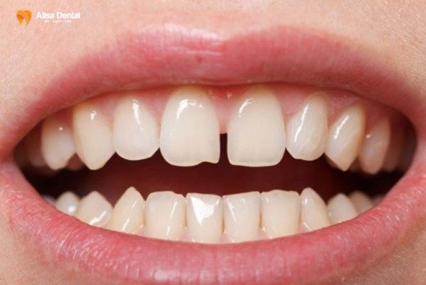 Niềng răng thưa mất bao lâu 1