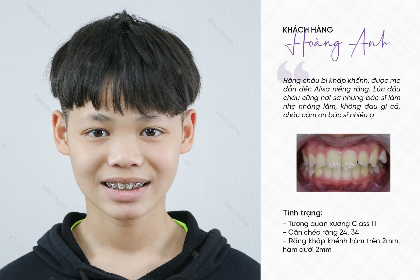 Trước và sau khi niềng răng 9