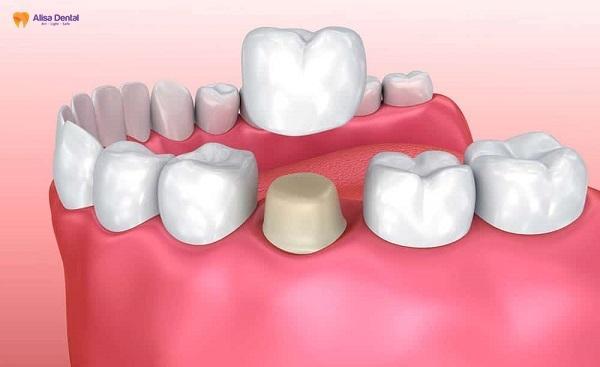 Bọc răng sứ 1 chiếc được không, bao nhiêu tiền 1 chiếc? 1