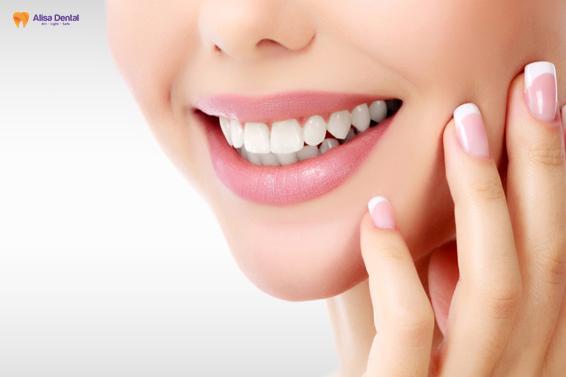 Bọc răng sứ mất bao lâu? - Giải pháp nào rút ngắn thời gian hiệu quả? 5