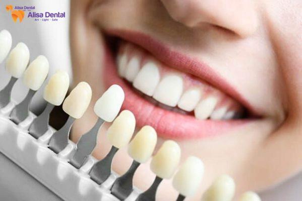 bọc răng sứ bị viêm lợi 2