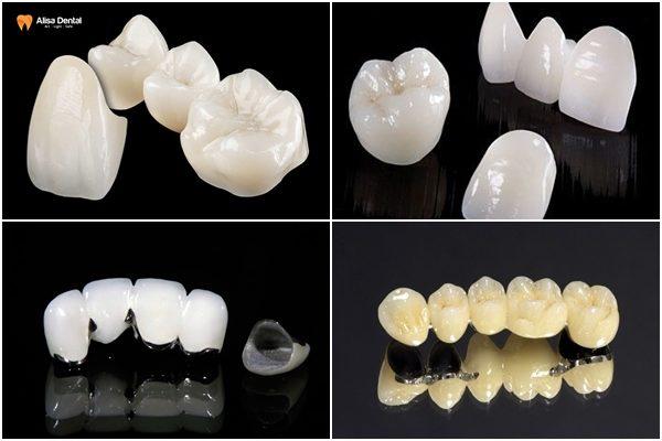 Bọc răng sứ có bền không 2