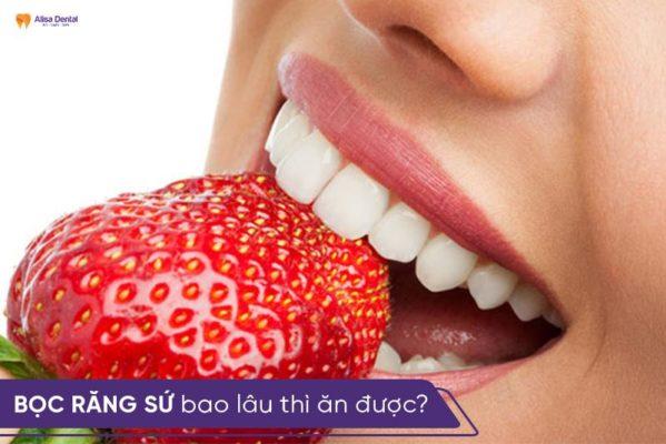 """Bọc răng sứ bao lâu thì ăn được? - 5 thực phẩm """"cần tránh"""" 1"""